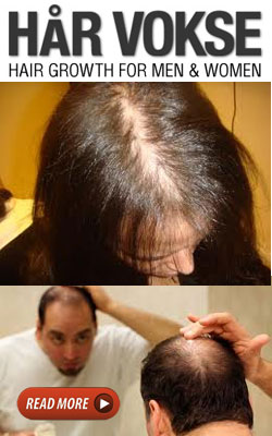 Hairloss Solution